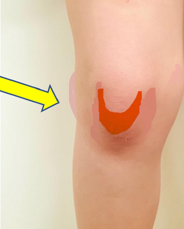 knee pain doctor near me