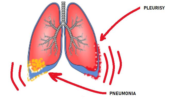 lung urgent care