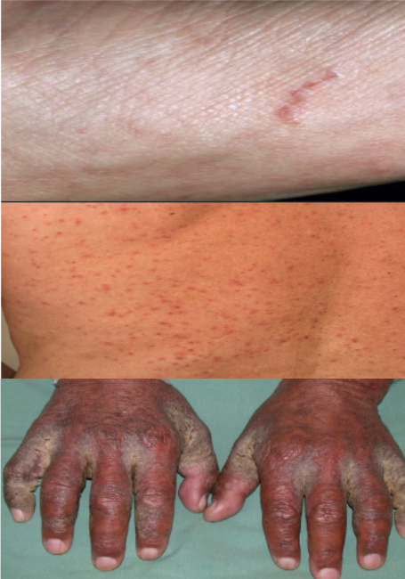 Read about Skin Infections and Scabies