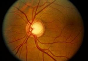 diabetes and eye
